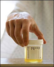 Tox Testing for Drugs of Abuse and Therapeutic Monitoring