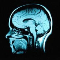 Measuring Metabolism Can Predict the Progress of Alzheimer's with 90% Accuracy, Study Says