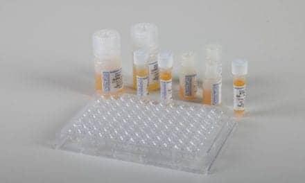 Proteinase-3 Native Auto-Antigen