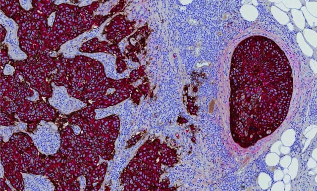 Roche Launches 2 Digital Pathology Image Analysis Algorithms for Precision Breast Cancer Diagnosis