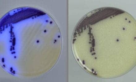 Culture Medium Differentiates Vibrios at Reduced Cost