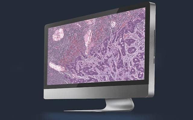 Pathology Goes Digital