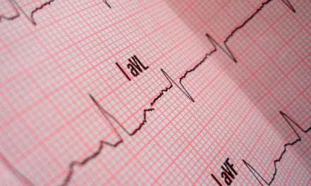 Study Demonstrates Cardiac Troponin Analysis Can Help Identify Heart Disease Risk, Guide Treatment