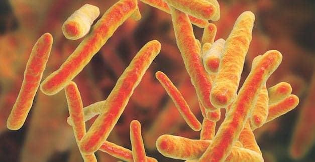 Advancing Tuberculosis Testing