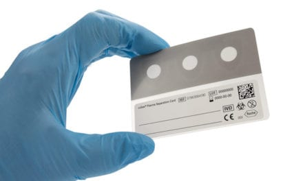 Roche Releases Sample Collection Device for HIV Plasma Viral Load Testing