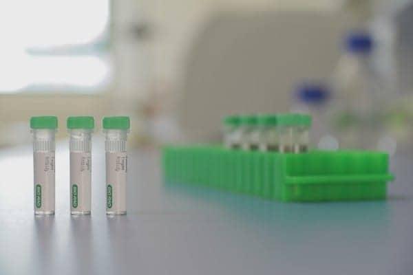 Bio-Rad Launches Anti-Ranibizumab Antibodies