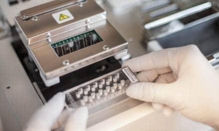SenzaGen Launches First In Vitro Airway Allergy Test