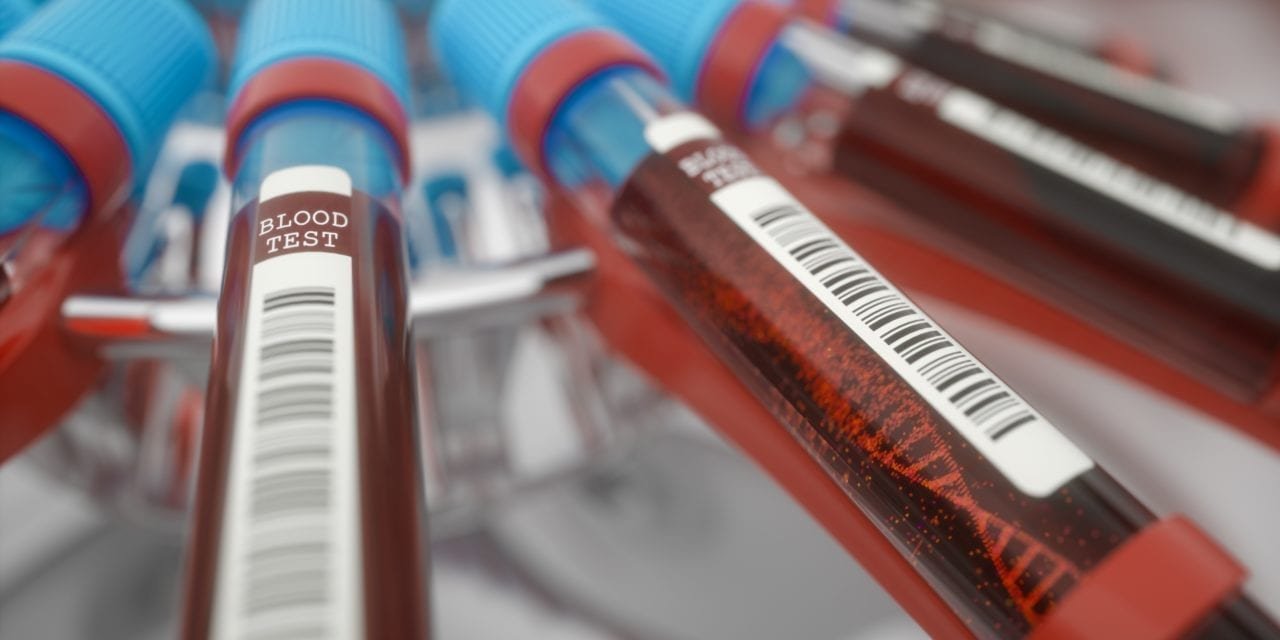 New Studies Support Blood Test for Early Detection of Alzheimer's
