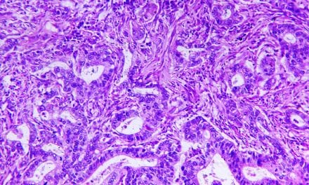 Olympus Technology Helps to Create AI-Based Tool for Diagnostic Pathology