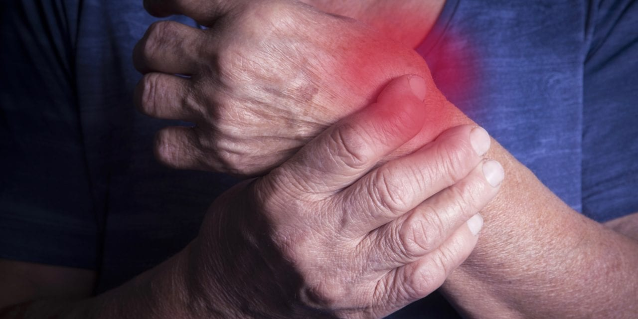 Vectra Testing, Biomarkers Help Predict Risk for CV Events in RA Patients