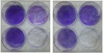Kanazawa University Research Reveals Origin of Lung Cancer Drug Resistance