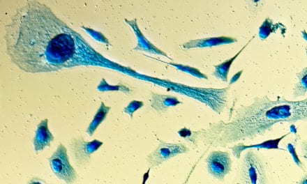 Researchers Aim to Create Point-of-Care Biosensor for Prostate Cancer