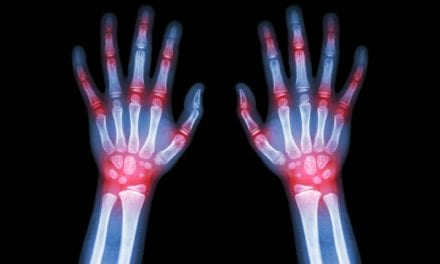 ACR Updates Recommendations for Rheumatoid Arthritis Disease Activity Measurement