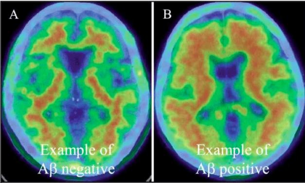 Novel Blood-Based Markers Detect Alzheimer's Disease