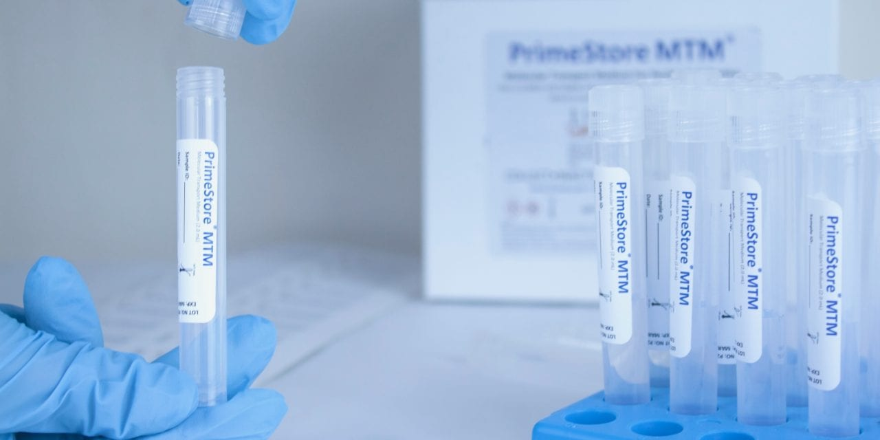 EKF Secures Covid-19 Sample Collection Kit Manufacturing and Supply Contracts