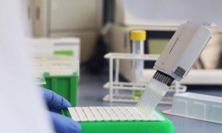 Biotecon Diagnostics Launches SARS-CoV-2 Screening and Identification Kits