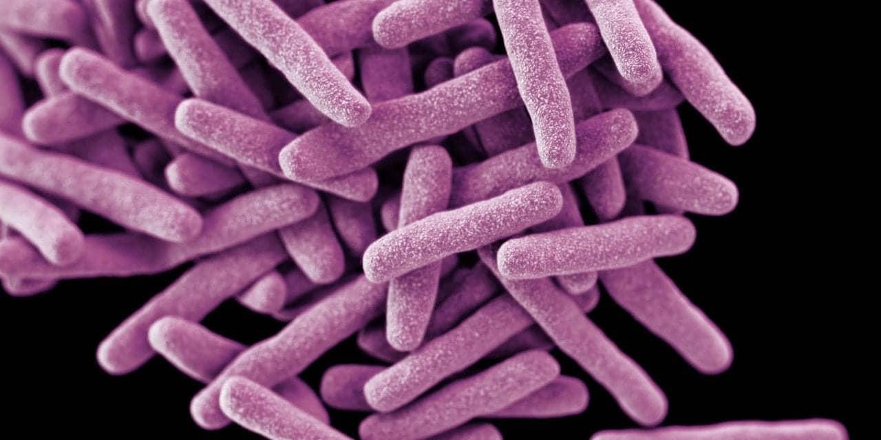 Webinar: Interferon-Gamma Release Assays in Modern Latent TB Testing