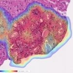 Artificial Intelligence Identifies Prostate Cancer With Near-Perfect Accuracy