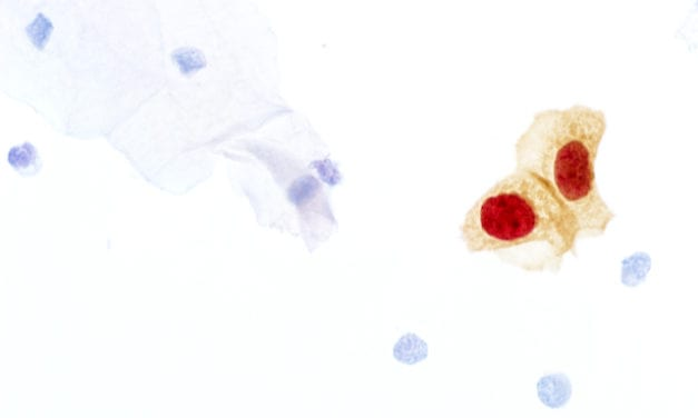 FDA Approves Expanded Use of CINtec Plus Cytology