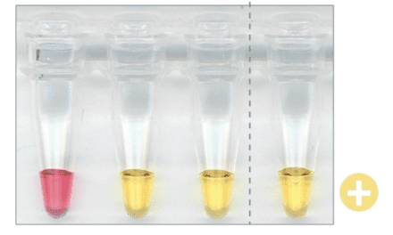 LAMP Assay Detects Covid-19 in 30 Minutes