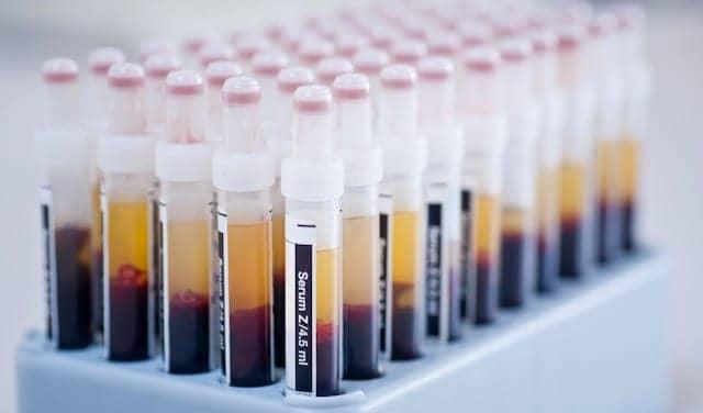 UK Biobank Boosts Covid-19 Sample Availability
