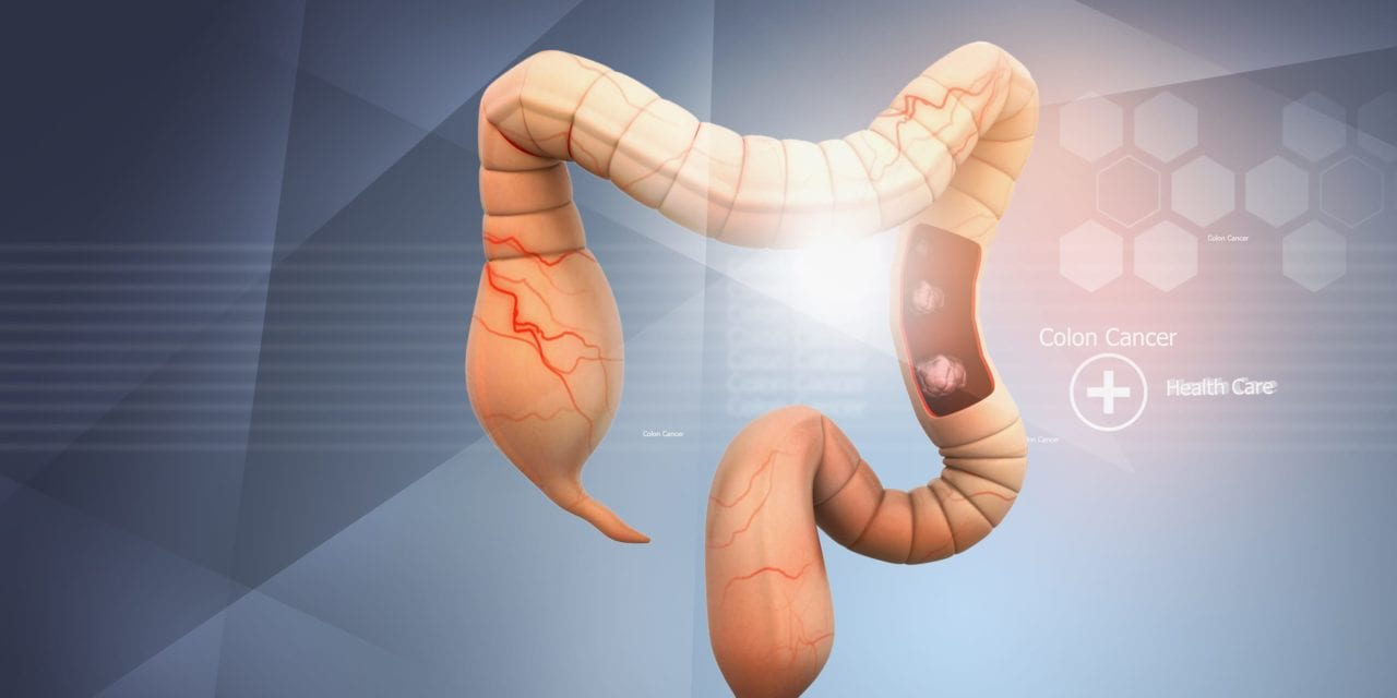 Liquid Biopsy for Colorectal Cancer Could Guide Therapy for Tumors