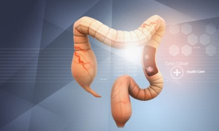 Mailed Colorectal Cancer Kits May Increase Screening Rates