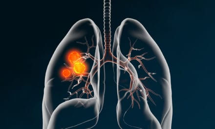 Large Prospective Lung Cancer Study to Be Presented at ESMO