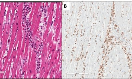First Pathology Report on Likely Covid-19 MIS Involving the Heart