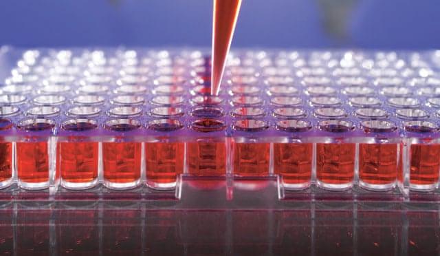 Survey: Clinical Laboratory Business Showing Improvement