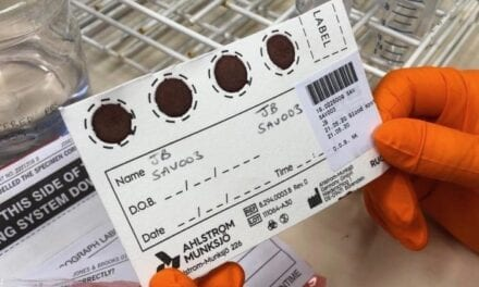Dried Blood Spot Sampling for Covid-19 Antibody Testing