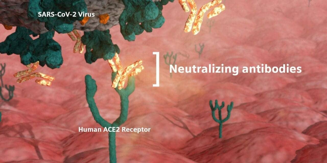 Siemens Healthineers Quantitative Covid-19 Test Measures Neutralizing Antibodies