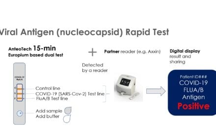 AnteoTech Developing POC Lateral Flow Tests for Covid-19 and Influenza