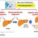 Blood Test Identifies Risk of Nonalcoholic Fatty Liver Disease