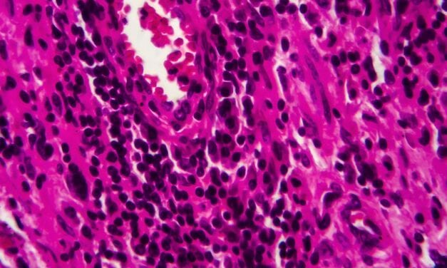 Novel Urine Screening Test Can Detect New and Recurrent Bladder Cancer