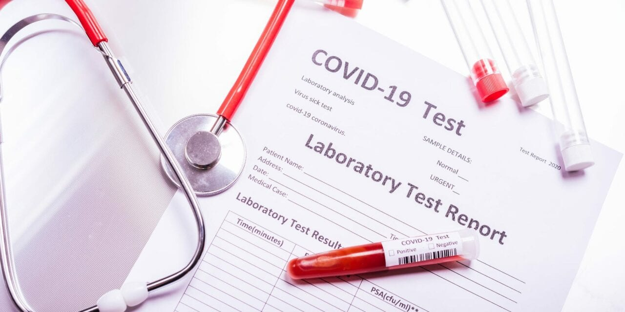 COVID Rapid Test Consistently Confirms Presence of Antibodies