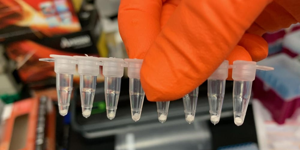 COVID-19 PCR Tests Can Be Freeze Dried