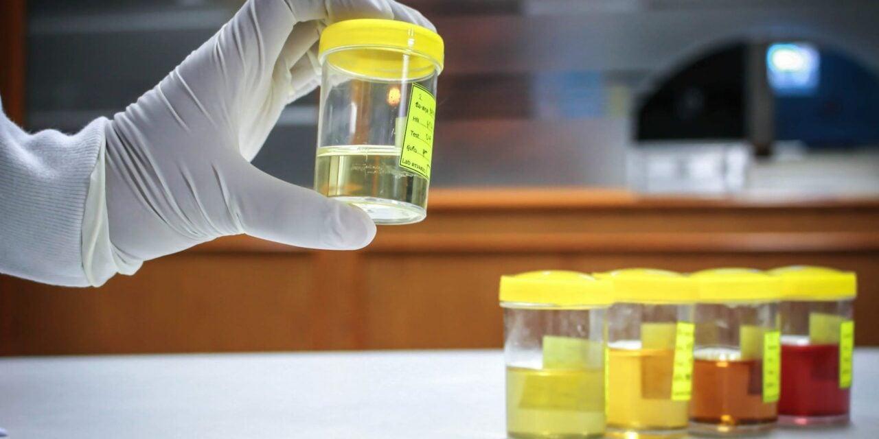 Arquer Diagnostics' ADXBLADDER Undergoes U.S. Clinical Trials