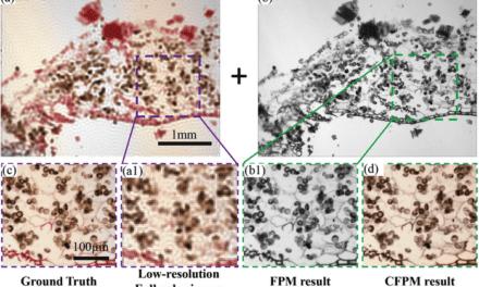 Fourier Ptychographic Microscopy May Transform Digital Pathology