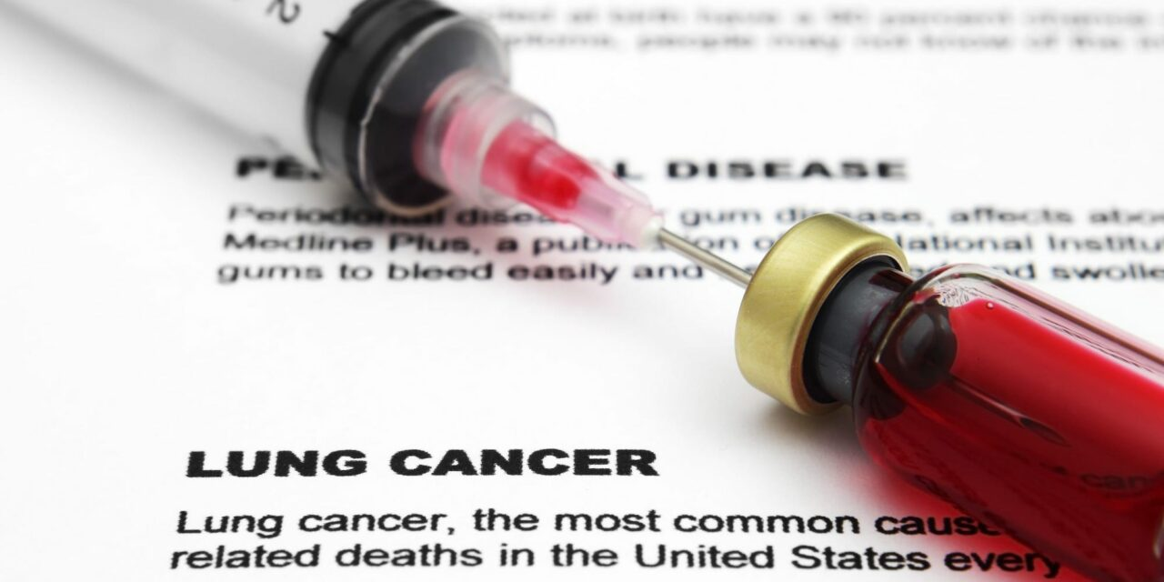 New Liquid Biopsy for Lung Cancer Has High Detection Rate