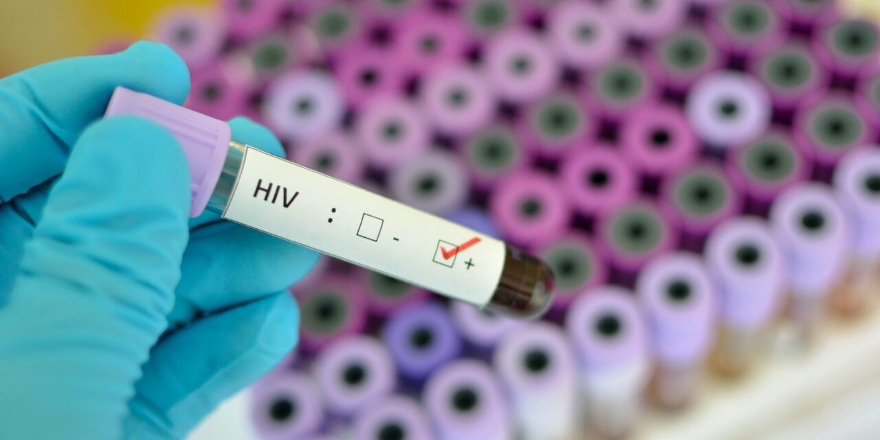 England Could Eliminate HIV Transmission by 2030