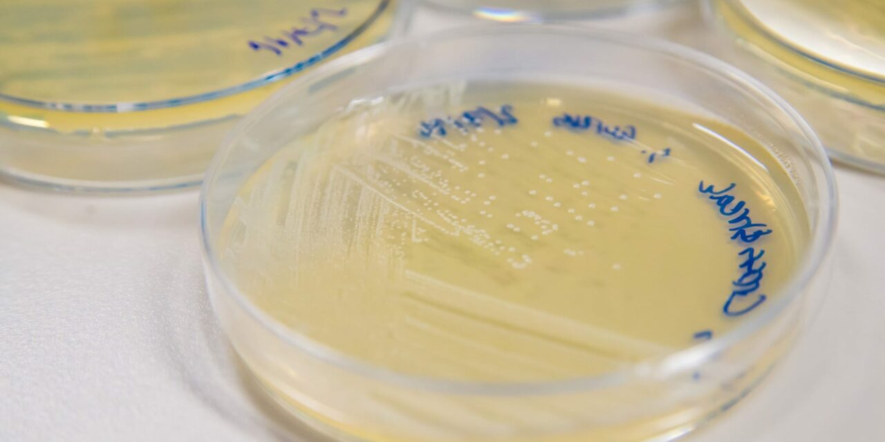 Computer Model Aims to Limit MRSA Spread in Hospitals